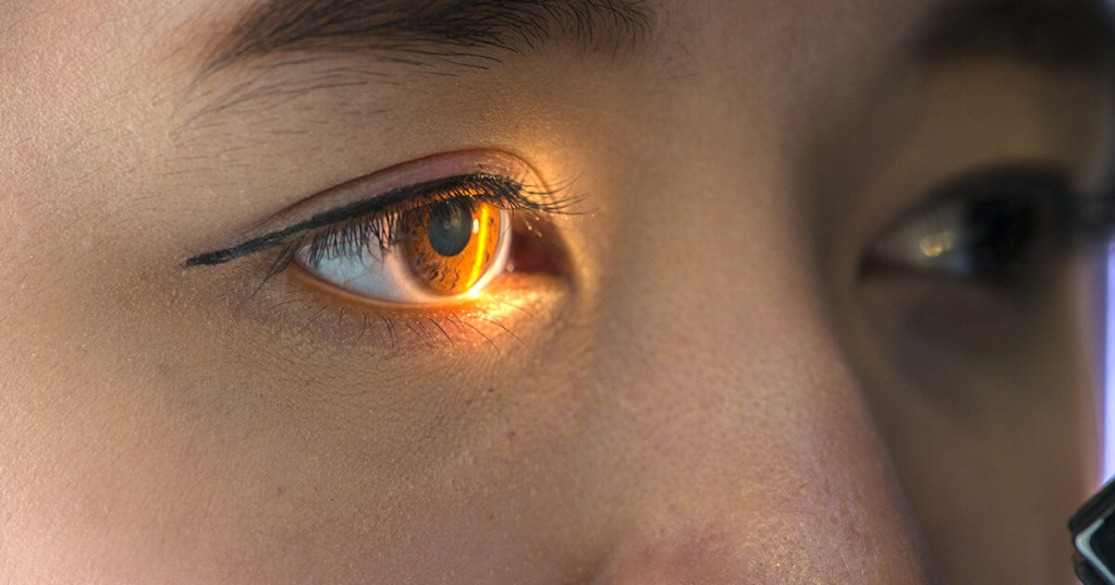 causas do glaucoma