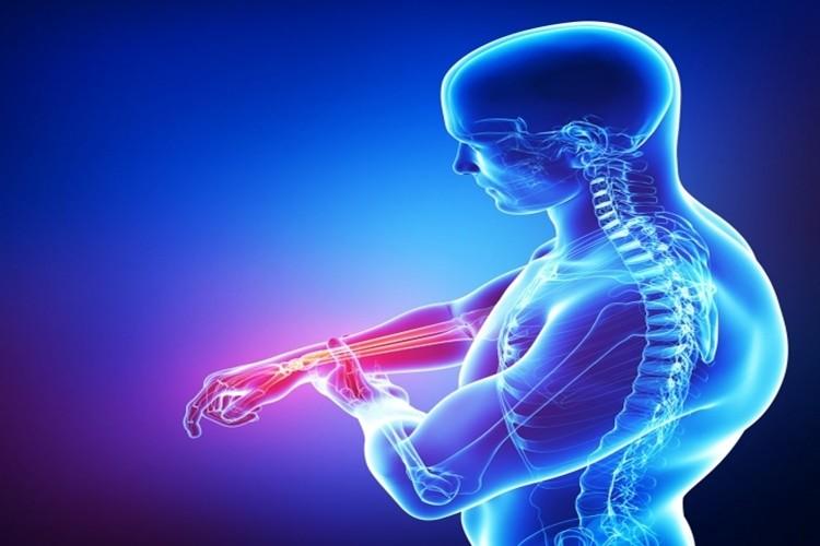 principais sintomas e tratamentos da síndrome de Guillain-Barre