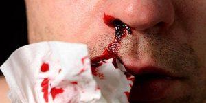 hemofilia a o que e