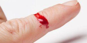 sintomas da hemofilia e tipos do distúrbio