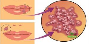 receitas caseiras para acabar com a herpes labial