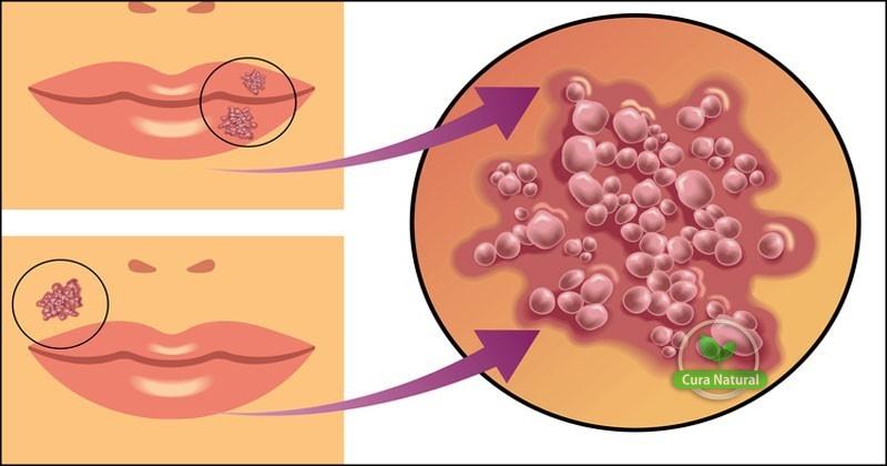 As 10 Receitas Caseiras Para Acabar com a Herpes Labial