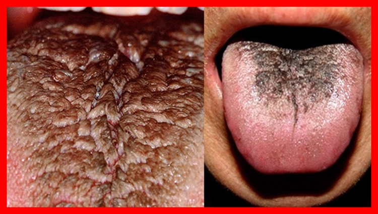 língua negra cabeluda