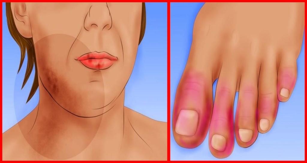 sintomas do lúpus que você talvez não saiba