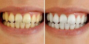 maneiras naturais de branquear os dentes