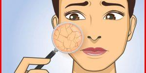 remédios caseiros para eliminar a pele seca