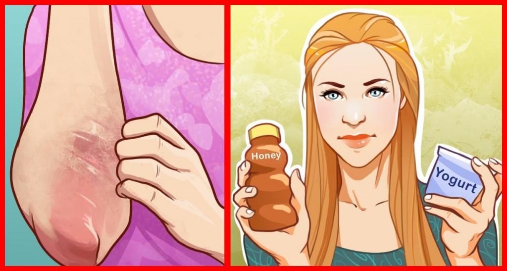 remedios caseiros para combater a pele seca