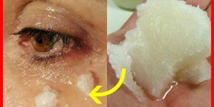 receita caseira para eliminar as rugas nos olhos