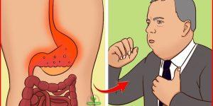 refluxo acido