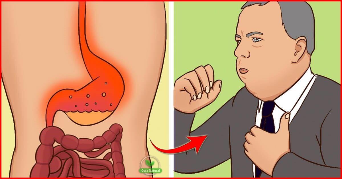 As 3 Dicas Para Tratar o Refluxo Ácido Naturalmente