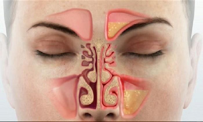 remedio caseiro para congestao nasal