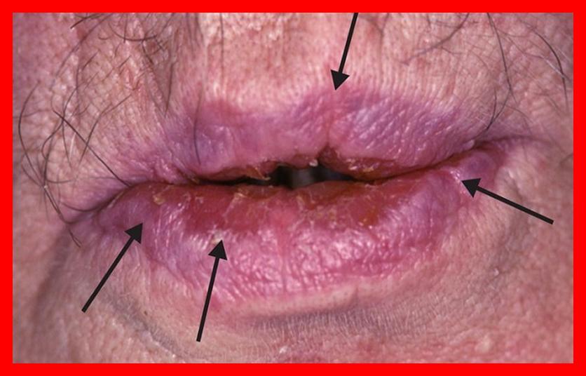 remédios caseiros para acabar com a boca seca