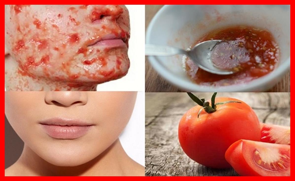 remedios caseiros para remover manchas na pele