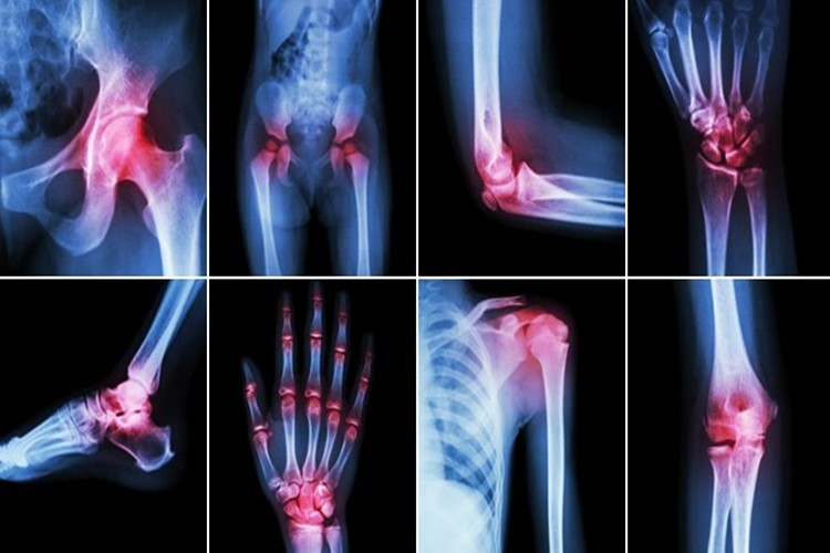 remédios caseiros para tratar artrite