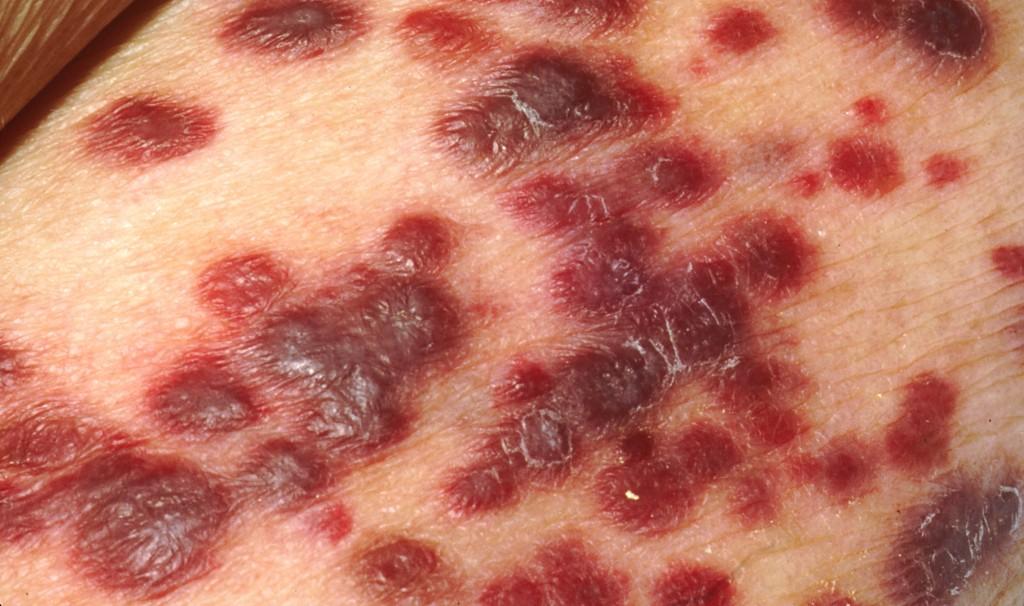 sarcoma de kaposi