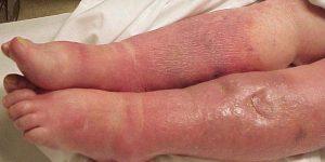 sintomas da septicemia que você precisa conhecer
