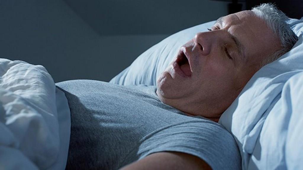 características da apneia do sono
