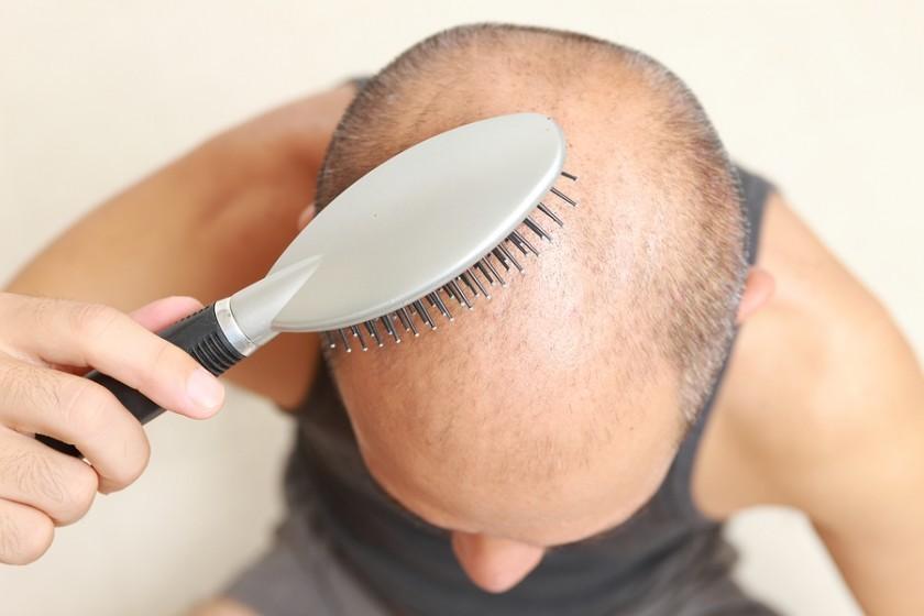 sinais de alopecia