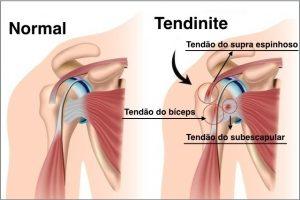 causas da tendinite