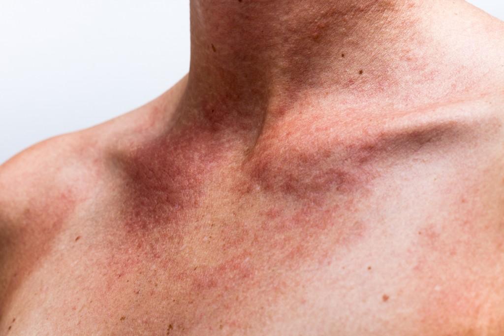 sintomas da dermatite