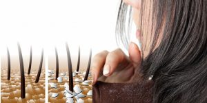 tratamentos caseiros para eliminar a caspa