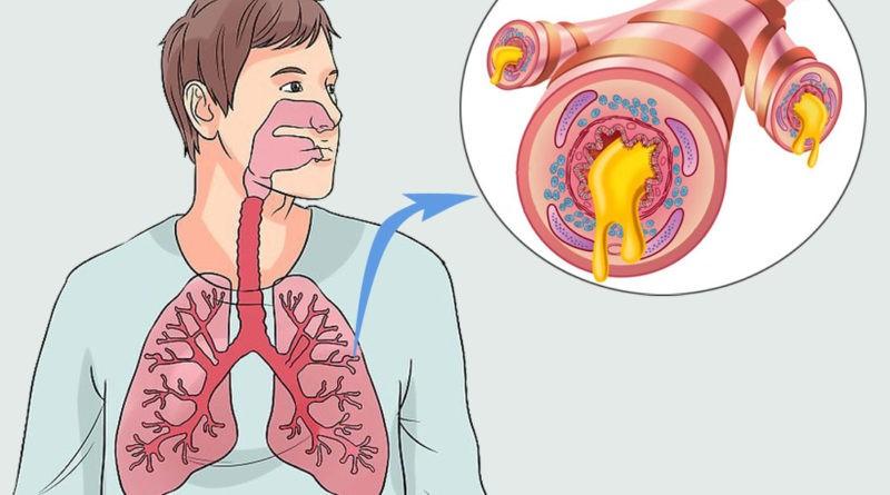 dicas de tratamento natural para bronquite