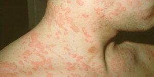 tratamento para alergia