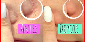 limpar a pele