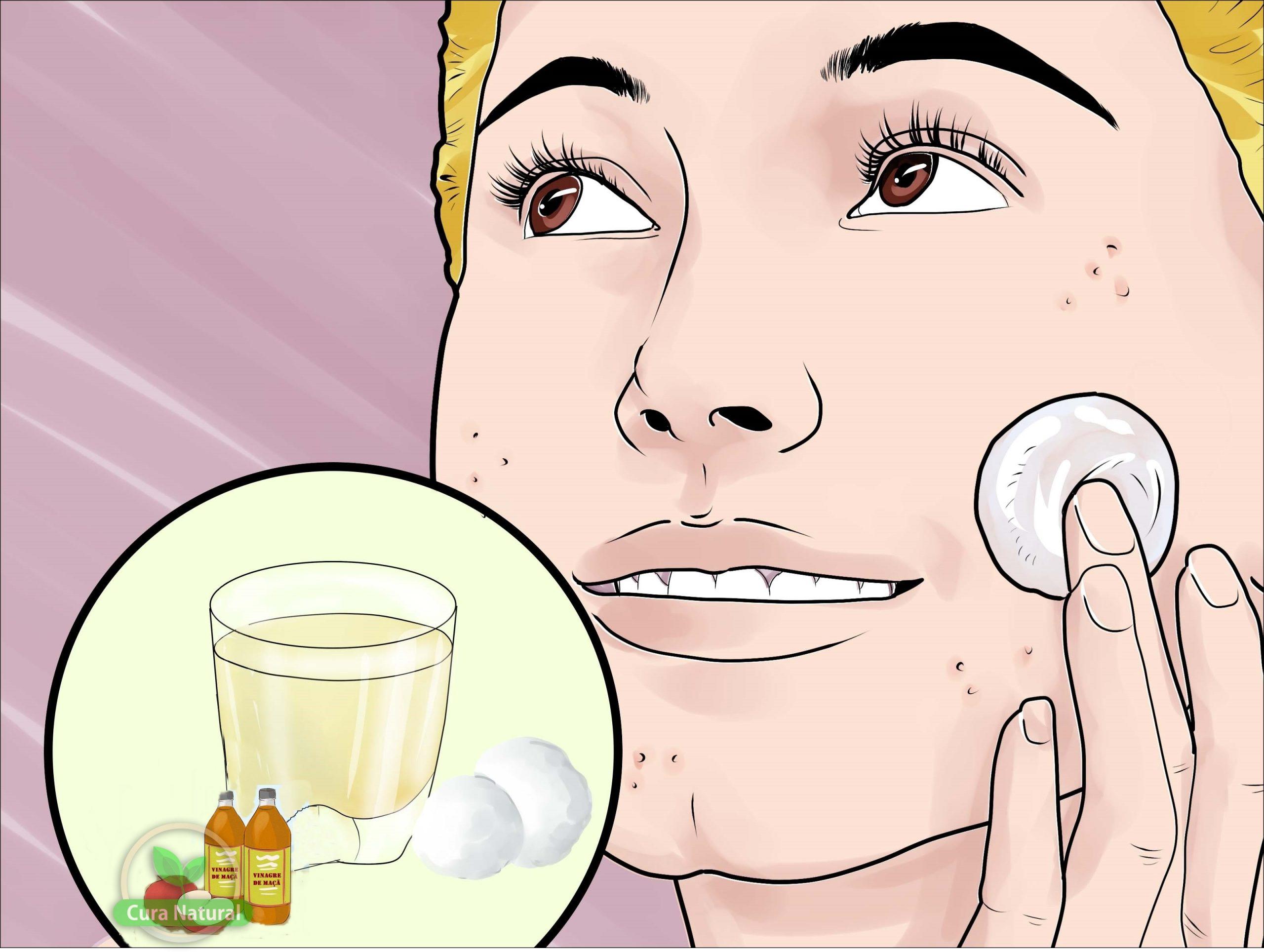 receitas com vinagre de maça para tratar acne