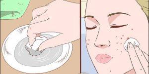 oleos essenciais para eliminar acne