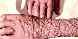 sintomas mais comuns da varíola