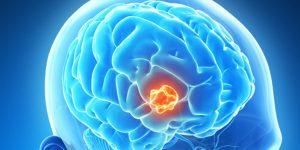 tratamento do astrocitoma