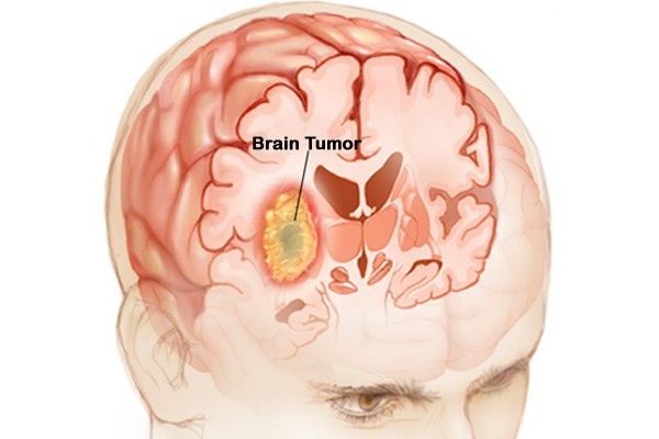 Glioma O Que 233 Causas Sintomas E Tratamentos