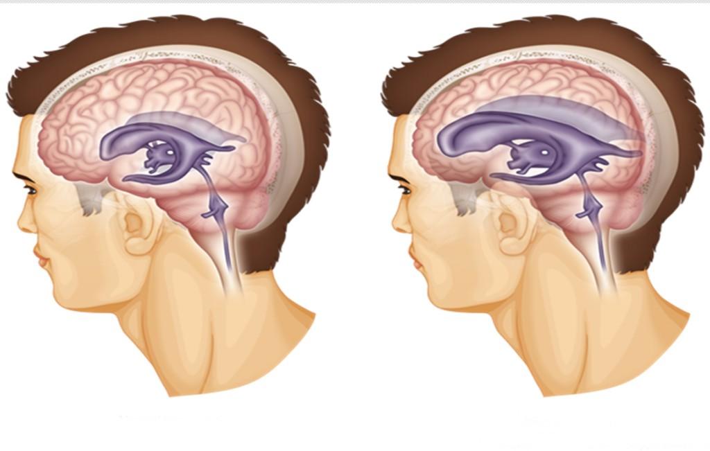 hidrocefalia o que e