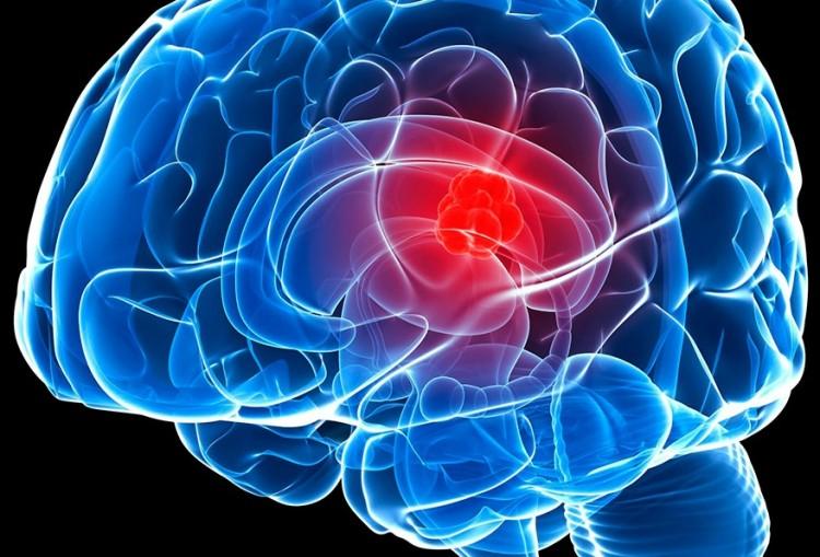 tratamentos comuns para meningioma