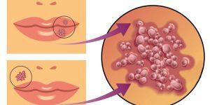citomegalovírus o que e