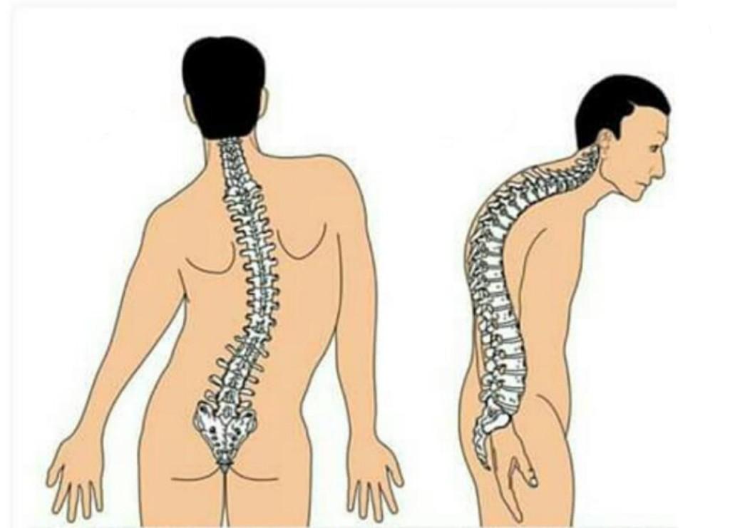 causas da doenca de scheuermann