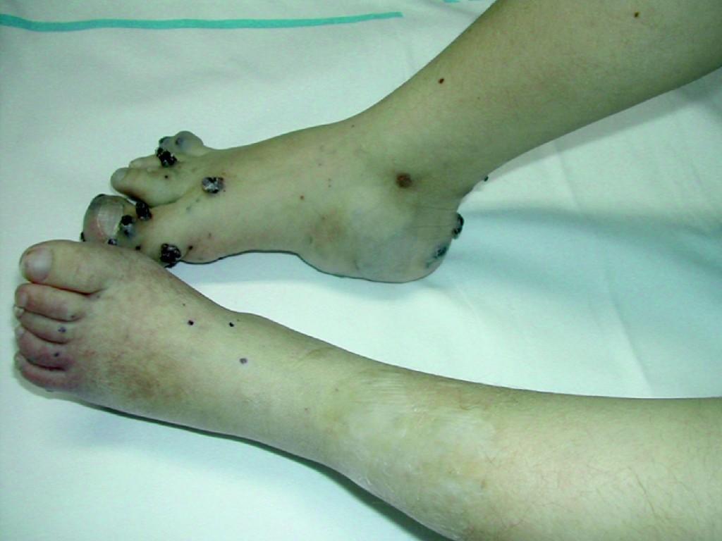 Síndrome de Bean – O que é, Sintomas e Tratamentos
