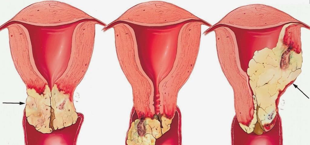 tratamento para cancer vulvar