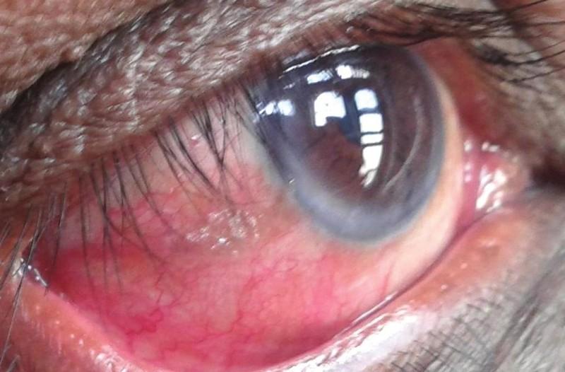 Sintomas da xeroftalmia
