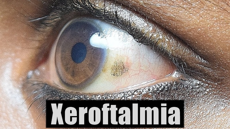 xeroftalmiaxeroftalmia