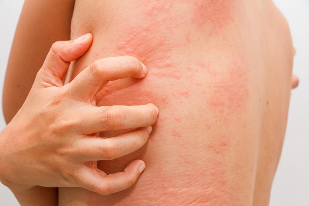 combater a alergia