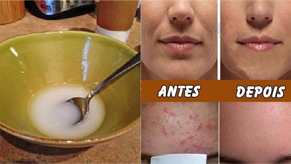 Após Lavar seu Rosto com Este Remédio, Você Reduz as Rugas, a Pele Flácida e a Acne!