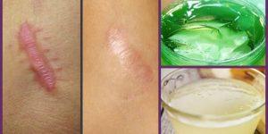 Receitas caseiras para eliminar queloides e cicatrizes