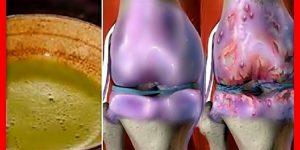 restaure seus ossos e articulações com batata e cebola