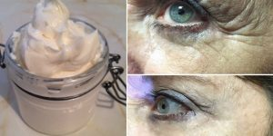 óleo de coco para eliminar rugas dos olhos