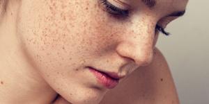 remédios caseiros para eliminar manchas no rosto