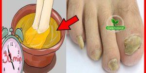receita para eliminar os fungos dos pés e unhas