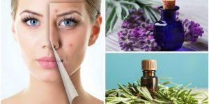 óleos essenciais para combater a acne