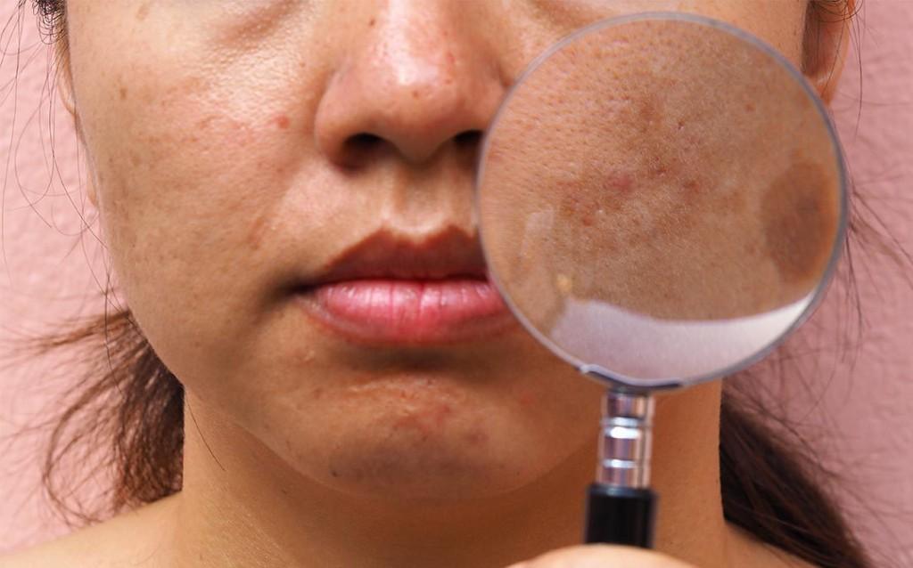 acido para tirar manchas escuras do rosto